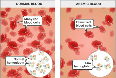 How Does a Blood Test for People With a Family History of Mesothelioma Work?