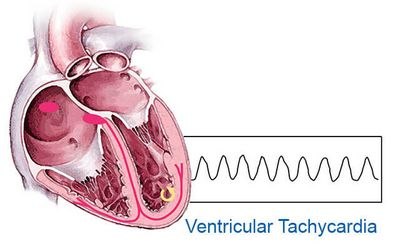 What Are the Most Common Symptoms of Ventricular Tachycardia?